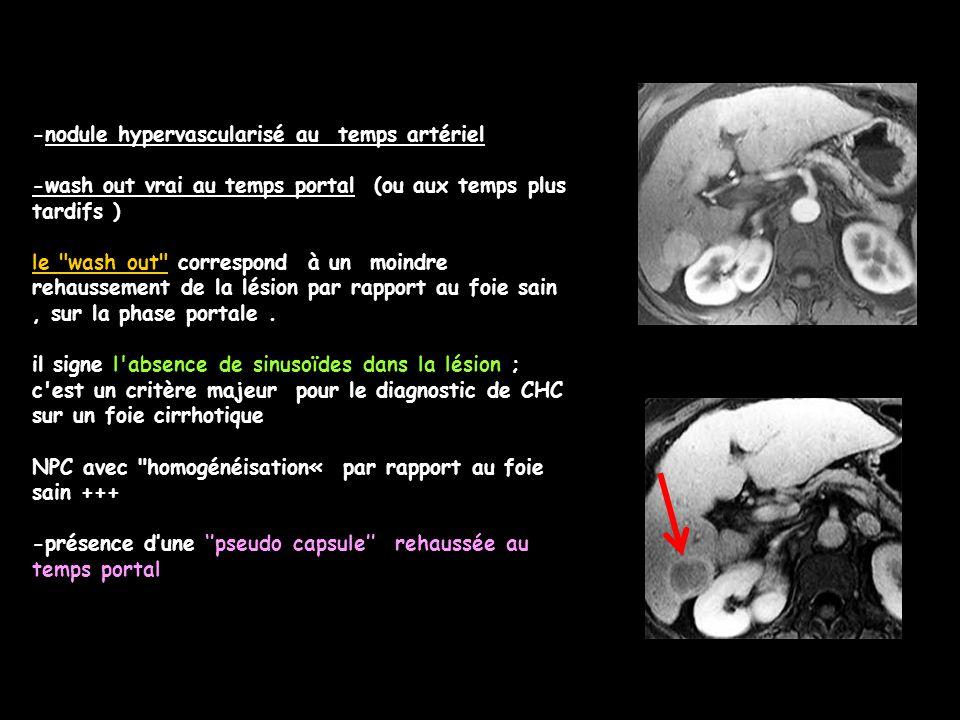 -nodule hypervascularisé au temps artériel -wash out vrai au temps portal (ou aux temps plus tardifs ) le