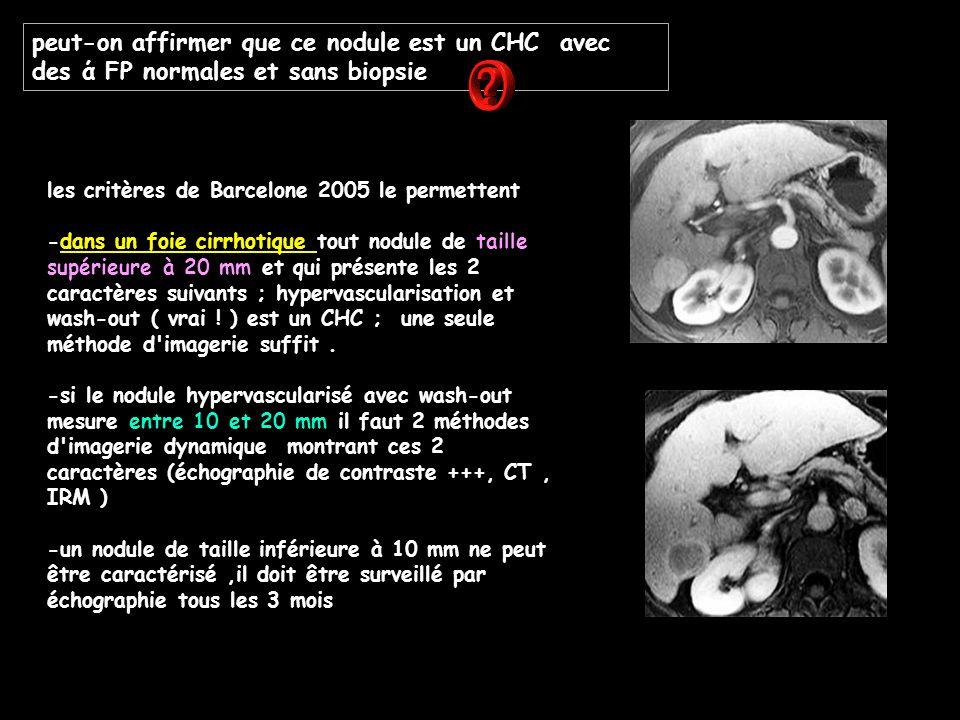 peut-on affirmer que ce nodule est un CHC avec des ά FP normales et sans biopsie les critères de Barcelone 2005 le permettent -dans un foie cirrhotiqu