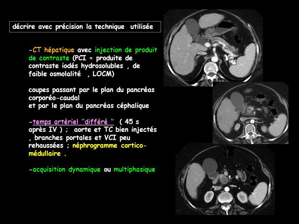 décrire avec précision la technique utilisée -CT hépatique avec injection de produit de contraste (PCI = produite de contraste iodés hydrosolubles, de