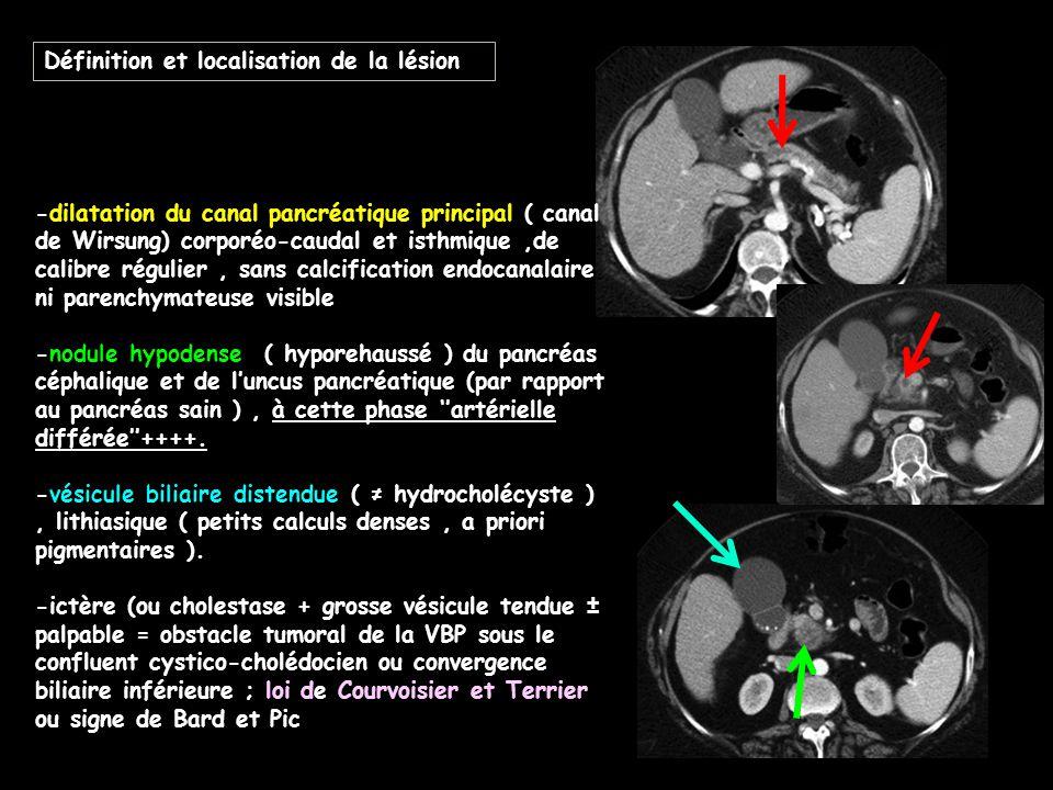 Définition et localisation de la lésion -dilatation du canal pancréatique principal ( canal de Wirsung) corporéo-caudal et isthmique,de calibre réguli