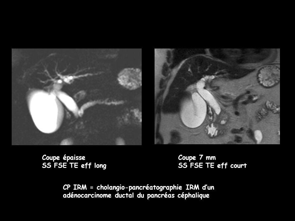 Coupe épaisse SS FSE TE eff long Coupe 7 mm SS FSE TE eff court CP IRM = cholangio-pancréatographie IRM d'un adénocarcinome ductal du pancréas céphali