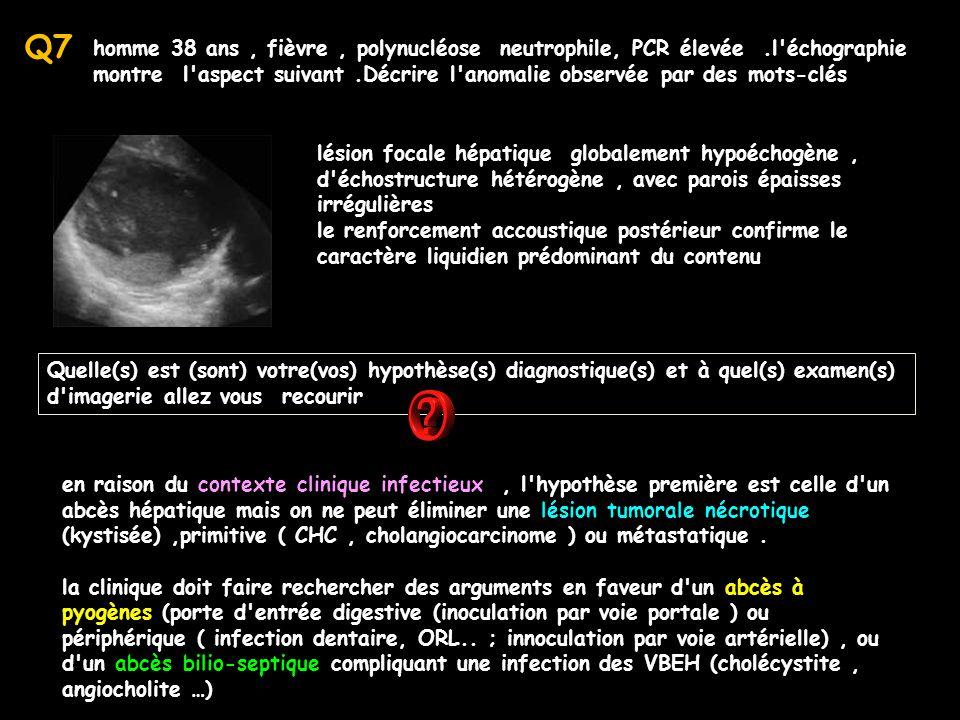 homme 38 ans, fièvre, polynucléose neutrophile, PCR élevée.l'échographie montre l'aspect suivant.Décrire l'anomalie observée par des mots-clés lésion