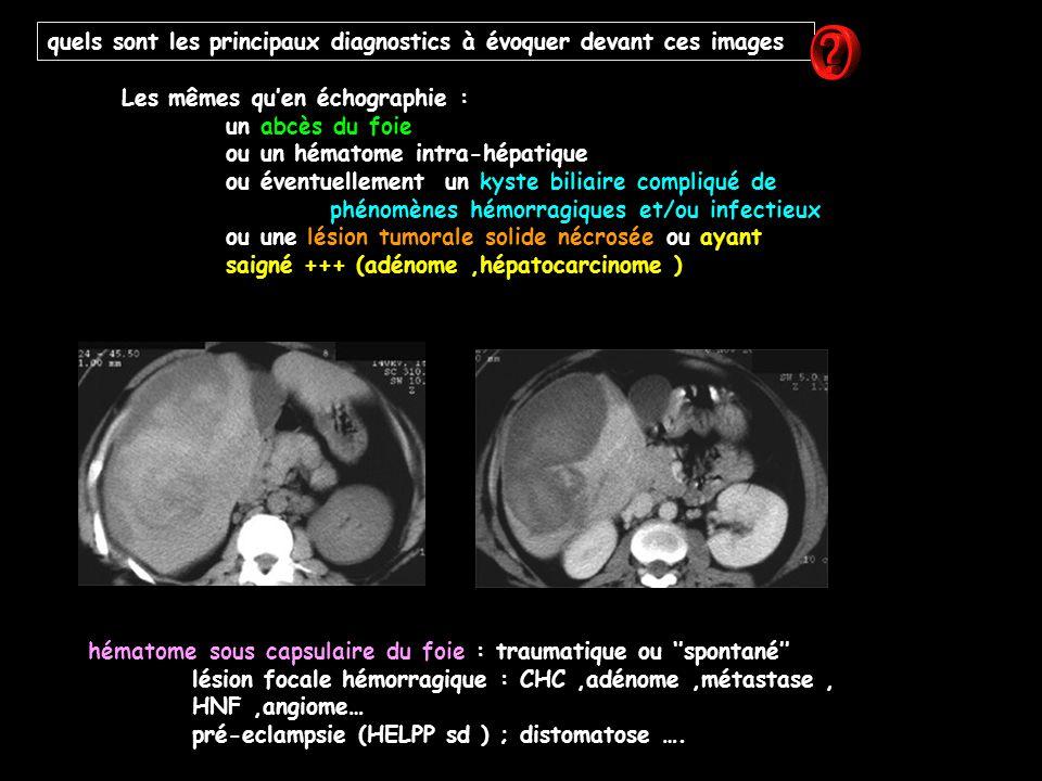 quels sont les principaux diagnostics à évoquer devant ces images Les mêmes qu'en échographie : un abcès du foie ou un hématome intra-hépatique ou éve