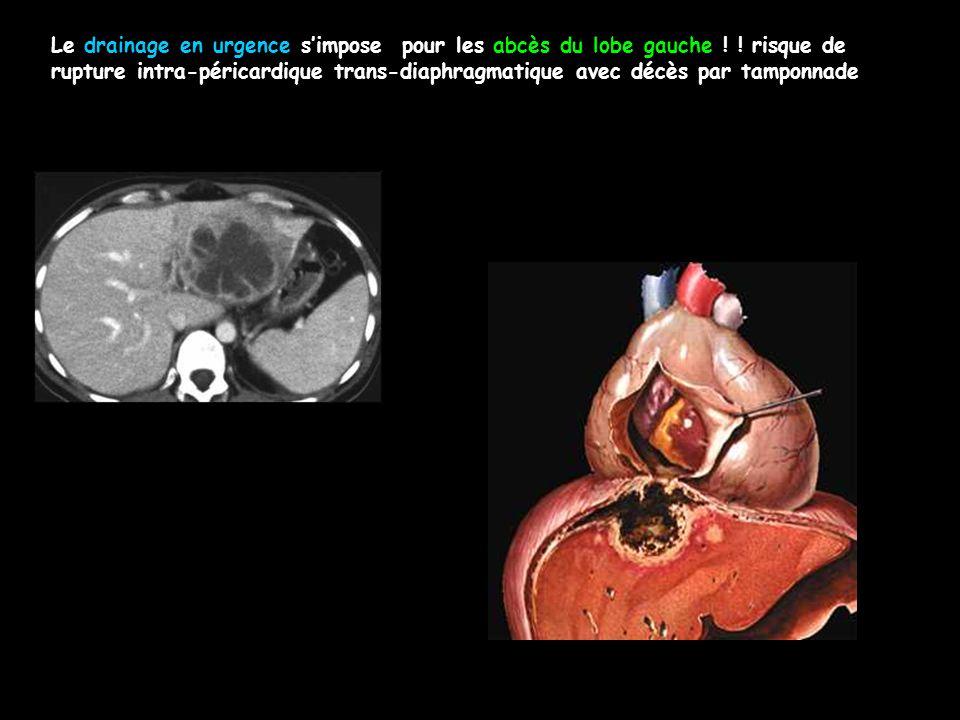 Le drainage en urgence s'impose pour les abcès du lobe gauche ! ! risque de rupture intra-péricardique trans-diaphragmatique avec décès par tamponnade