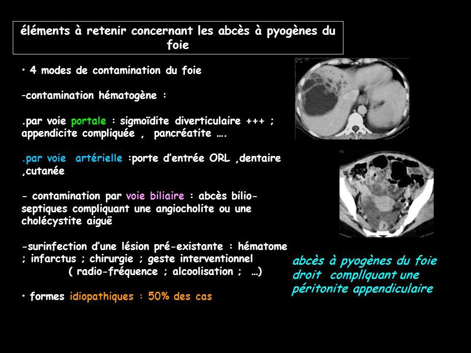 éléments à retenir concernant les abcès à pyogènes du foie 4 modes de contamination du foie -contamination hématogène :.par voie portale : sigmoïdite