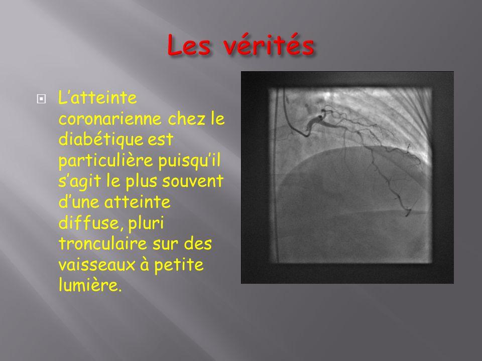  L'atteinte coronarienne chez le diabétique est particulière puisqu'il s'agit le plus souvent d'une atteinte diffuse, pluri tronculaire sur des vaiss
