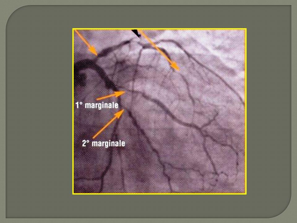 Localisation anatomiqueclasseniveau TCG >5O%IA IVA prox >5O%IA Bi ou Tritronculaires FE altéréeIB Ischémie étendue >10% VGIB Une seule artère restante avec sténose>5O%IC
