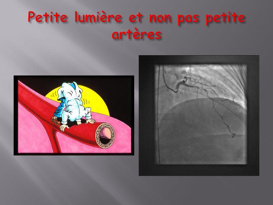 Sténose >50% avec angor limitant ne répondant pas au traitement médical IA Dyspnée IC avec ischémie viabilité >10% VG alimenté par une artère avec sténose >50% IIaB Pas de symptomatologie limitante sous traitement médical optimal IIIC