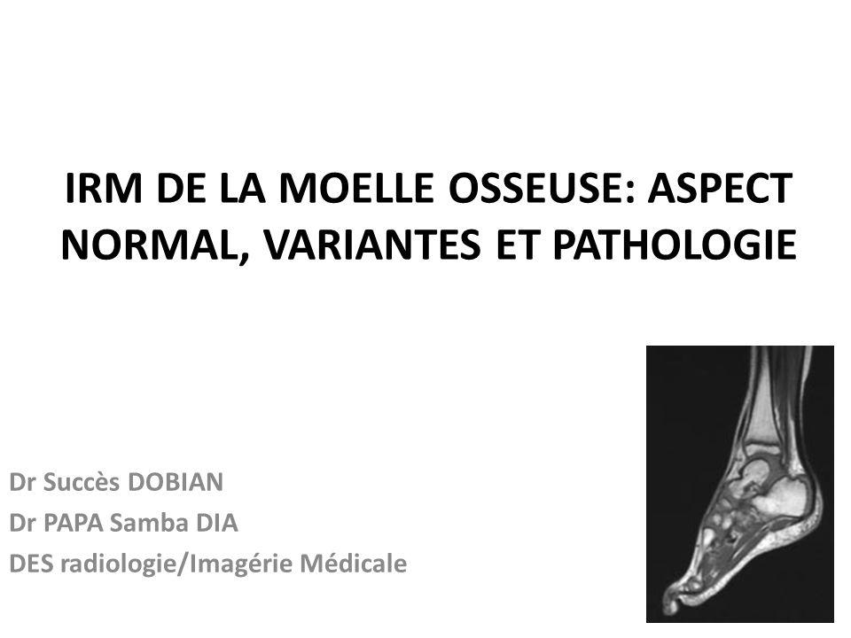 IRM DE LA MOELLE OSSEUSE: ASPECT NORMAL, VARIANTES ET PATHOLOGIE Dr Succès DOBIAN Dr PAPA Samba DIA DES radiologie/Imagérie Médicale