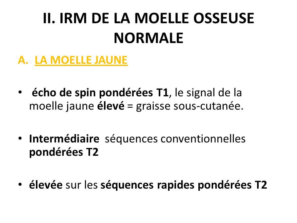 II. IRM DE LA MOELLE OSSEUSE NORMALE A.LA MOELLE JAUNE écho de spin pondérées T1, le signal de la moelle jaune élevé = graisse sous-cutanée. Intermédi