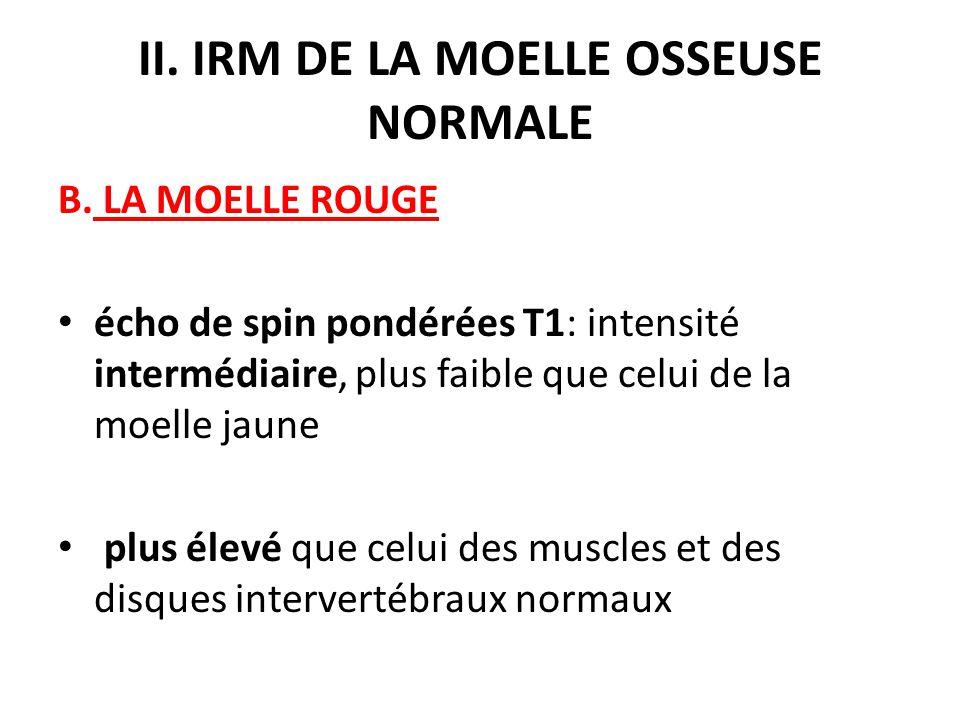 II. IRM DE LA MOELLE OSSEUSE NORMALE B. LA MOELLE ROUGE écho de spin pondérées T1: intensité intermédiaire, plus faible que celui de la moelle jaune p
