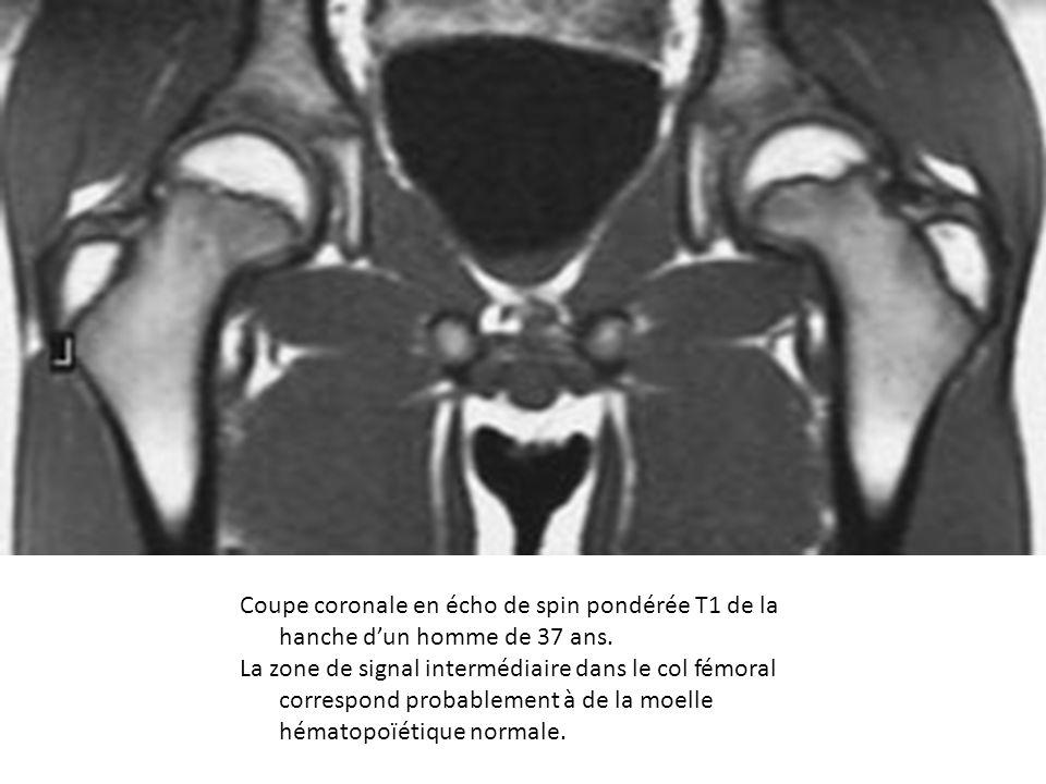 Coupe coronale en écho de spin pondérée T1 de la hanche d'un homme de 37 ans. La zone de signal intermédiaire dans le col fémoral correspond probablem