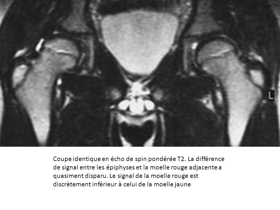 Coupe identique en écho de spin pondérée T2. La différence de signal entre les épiphyses et la moelle rouge adjacente a quasiment disparu. Le signal d