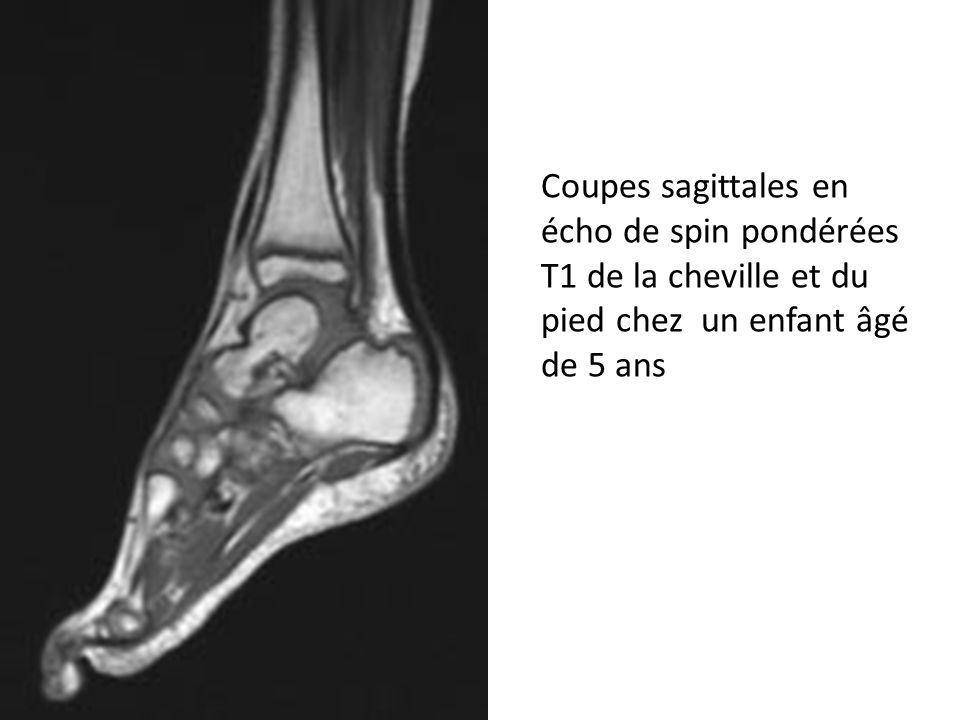 Coupes sagittales en écho de spin pondérées T1 de la cheville et du pied chez un enfant âgé de 5 ans