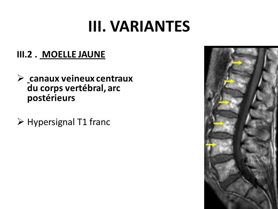 III. VARIANTES III.2. MOELLE JAUNE  canaux veineux centraux du corps vertébral, arc postérieurs  Hypersignal T1 franc