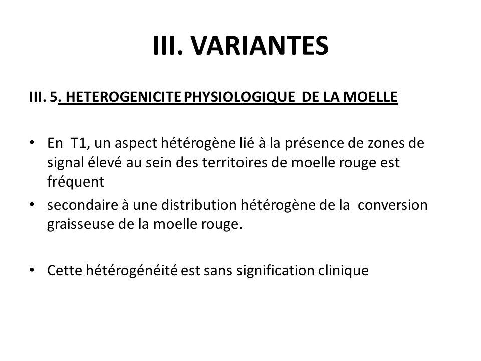 III. VARIANTES III. 5. HETEROGENICITE PHYSIOLOGIQUE DE LA MOELLE En T1, un aspect hétérogène lié à la présence de zones de signal élevé au sein des te