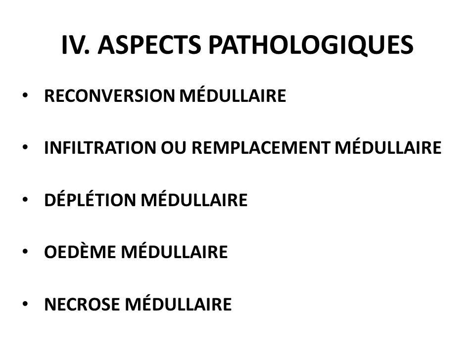 RECONVERSION MÉDULLAIRE INFILTRATION OU REMPLACEMENT MÉDULLAIRE DÉPLÉTION MÉDULLAIRE OEDÈME MÉDULLAIRE NECROSE MÉDULLAIRE