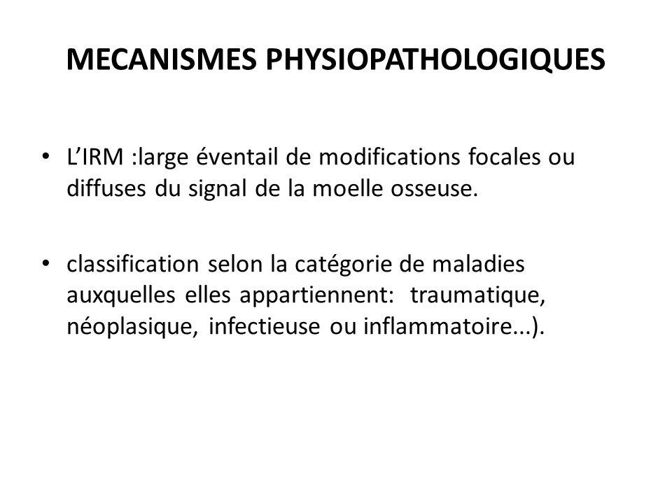 L'IRM :large éventail de modifications focales ou diffuses du signal de la moelle osseuse. classification selon la catégorie de maladies auxquelles el