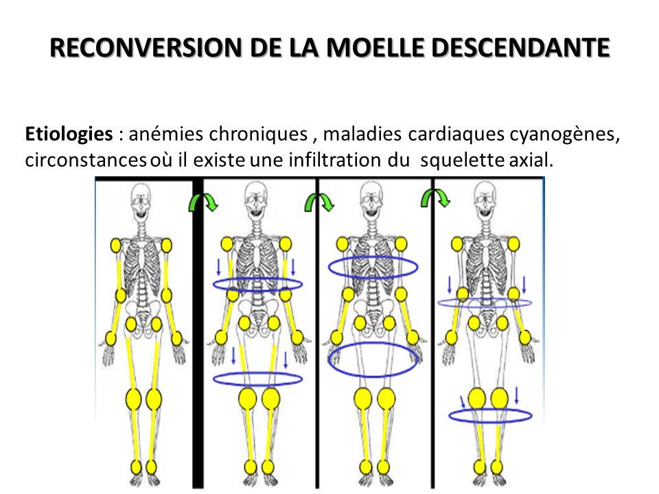 Etiologies : anémies chroniques, maladies cardiaques cyanogènes, circonstances où il existe une infiltration du squelette axial. RECONVERSION DE LA MO