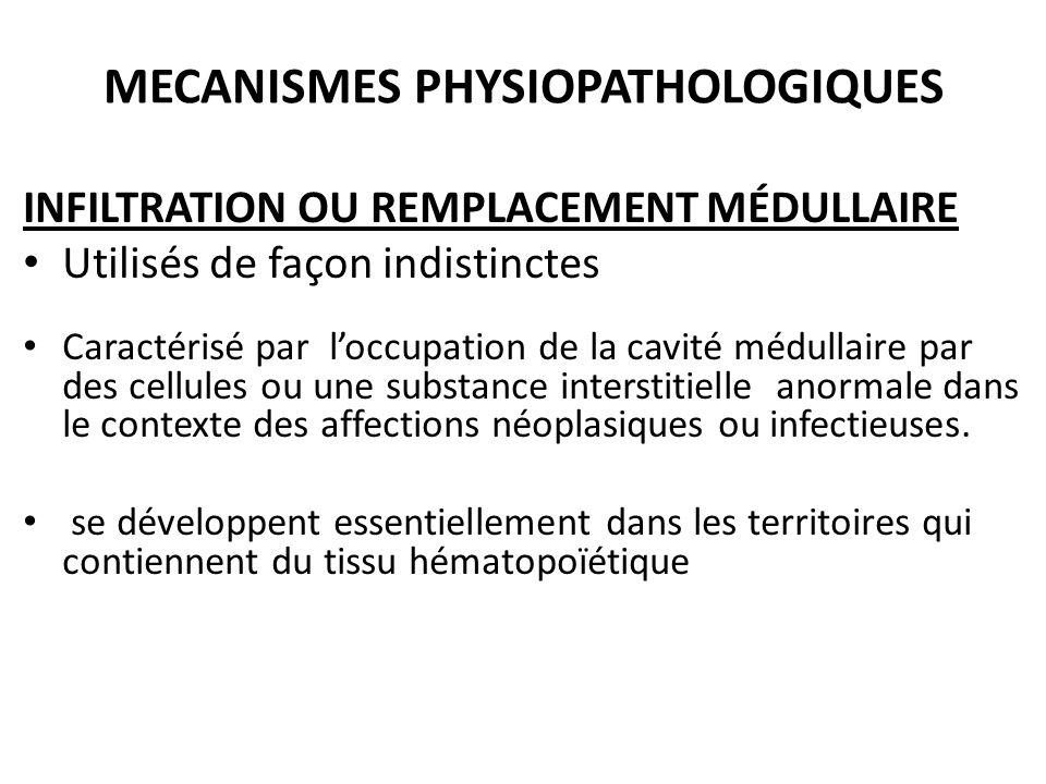 MECANISMES PHYSIOPATHOLOGIQUES INFILTRATION OU REMPLACEMENT MÉDULLAIRE Utilisés de façon indistinctes Caractérisé par l'occupation de la cavité médull