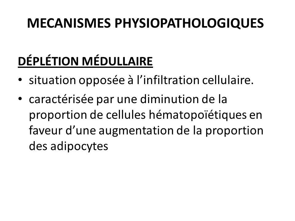 MECANISMES PHYSIOPATHOLOGIQUES DÉPLÉTION MÉDULLAIRE situation opposée à l'infiltration cellulaire. caractérisée par une diminution de la proportion de