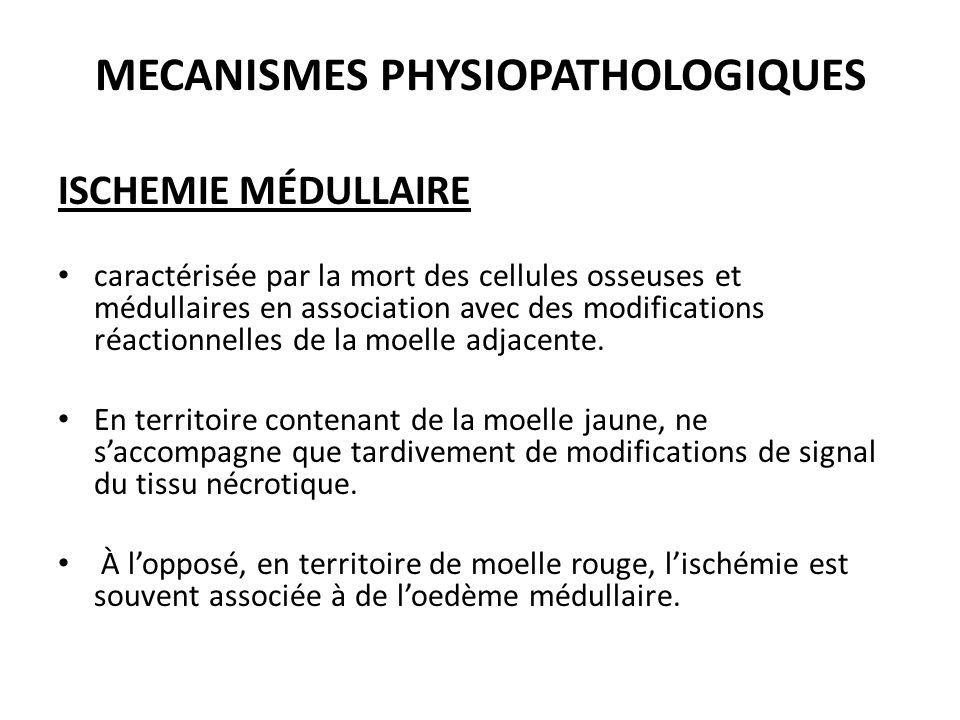 MECANISMES PHYSIOPATHOLOGIQUES ISCHEMIE MÉDULLAIRE caractérisée par la mort des cellules osseuses et médullaires en association avec des modifications