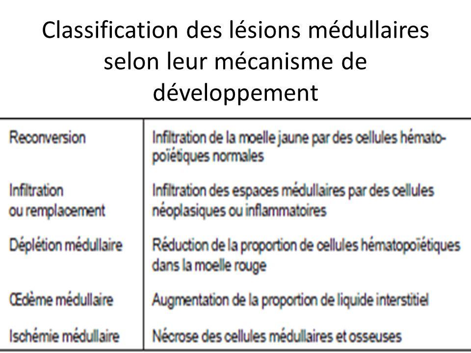 Classification des lésions médullaires selon leur mécanisme de développement