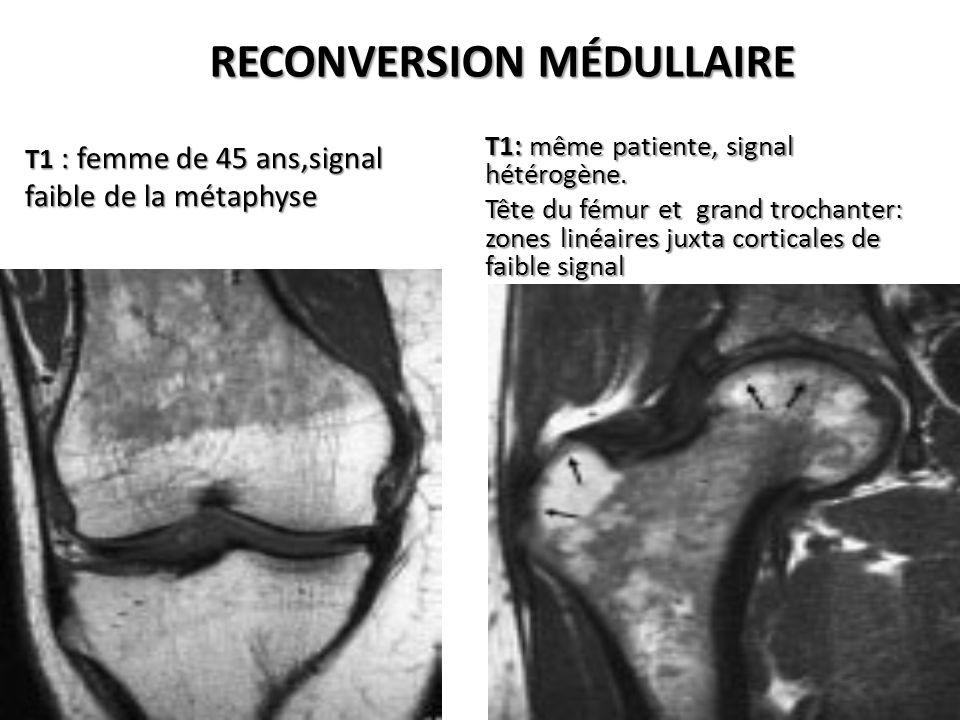 RECONVERSION MÉDULLAIRE T1 : femme de 45 ans,signal faible de la métaphyse T1: même patiente, signal hétérogène. Tête du fémur et grand trochanter: zo