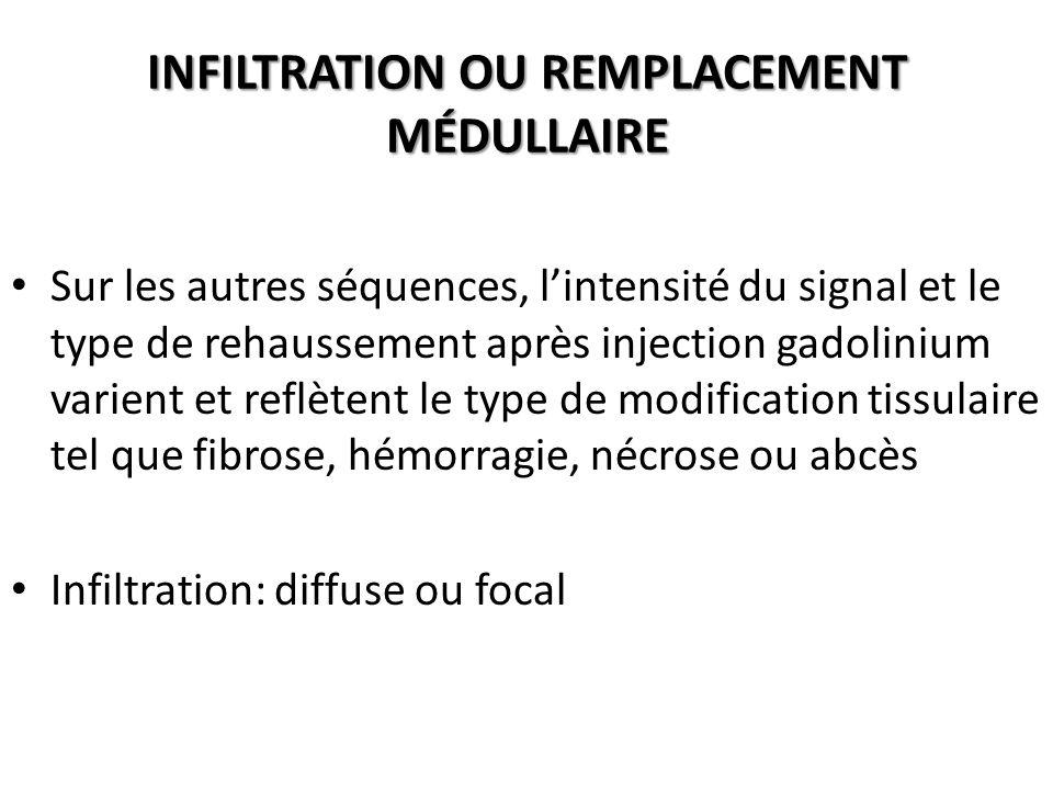 INFILTRATION OU REMPLACEMENT MÉDULLAIRE Sur les autres séquences, l'intensité du signal et le type de rehaussement après injection gadolinium varient