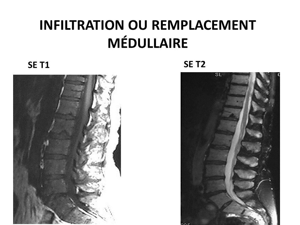 INFILTRATION OU REMPLACEMENT MÉDULLAIRE SE T1 SE T2