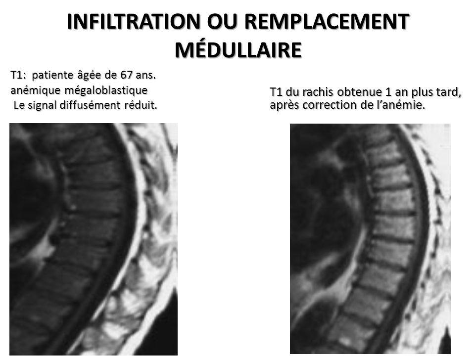 INFILTRATION OU REMPLACEMENT MÉDULLAIRE T1: patiente âgée de 67 ans. anémique mégaloblastique Le signal diffusément réduit. Le signal diffusément rédu
