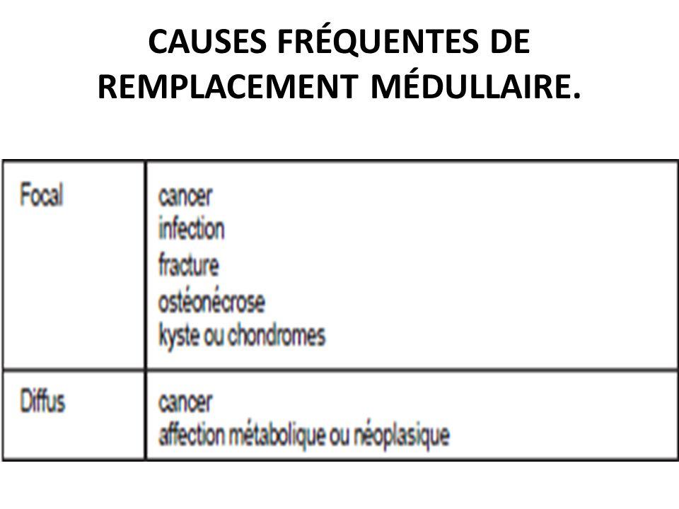 CAUSES FRÉQUENTES DE REMPLACEMENT MÉDULLAIRE.