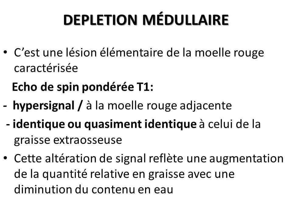 DEPLETION MÉDULLAIRE C'est une lésion élémentaire de la moelle rouge caractérisée Echo de spin pondérée T1: - hypersignal / à la moelle rouge adjacent