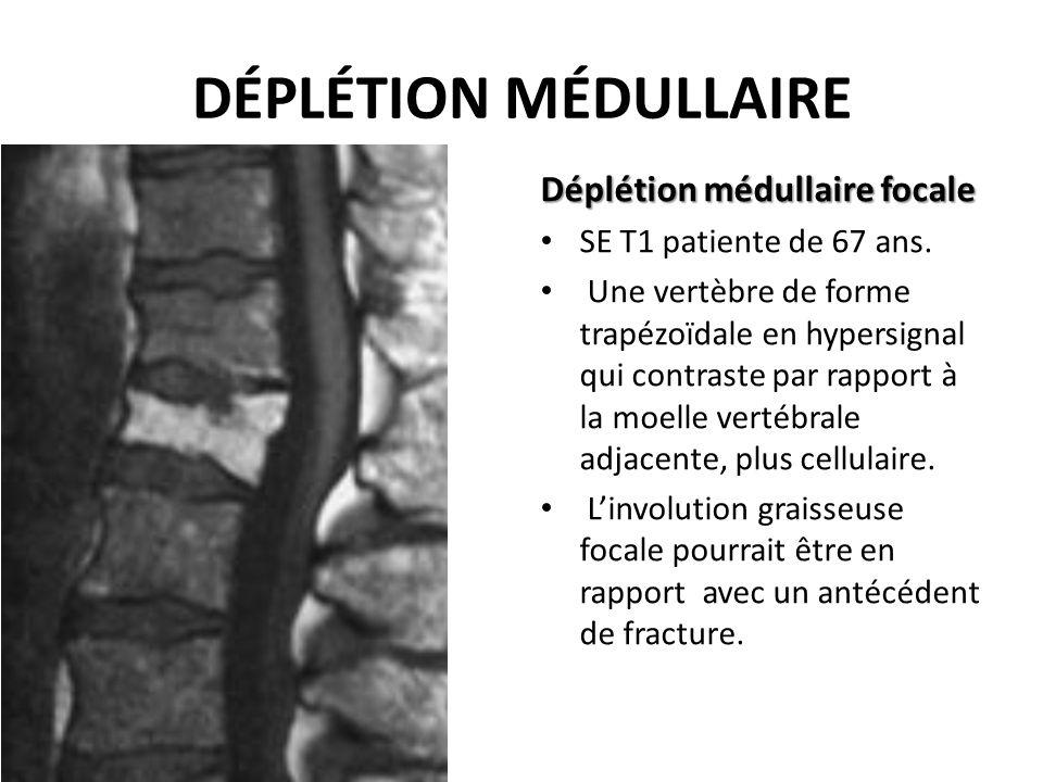 DÉPLÉTION MÉDULLAIRE Déplétion médullaire focale SE T1 patiente de 67 ans. Une vertèbre de forme trapézoïdale en hypersignal qui contraste par rapport