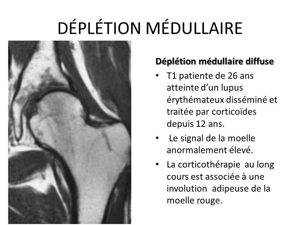 DÉPLÉTION MÉDULLAIRE Déplétion médullaire diffuse T1 patiente de 26 ans atteinte d'un lupus érythémateux disséminé et traitée par corticoïdes depuis 1