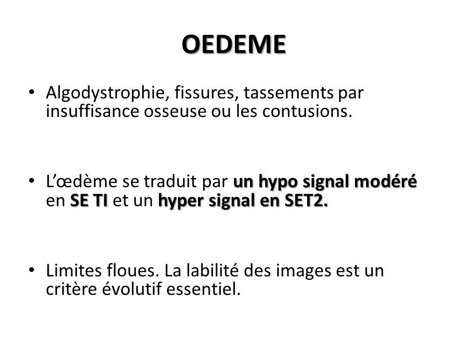 OEDEME Algodystrophie, fissures, tassements par insuffisance osseuse ou les contusions. un hypo signal modéré SE TI hyper signal en SET2. L'œdème se t