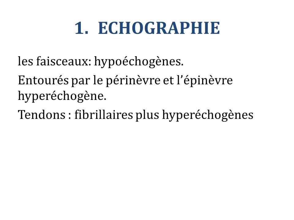 1.ECHOGRAPHIE les faisceaux: hypoéchogènes. Entourés par le périnèvre et l'épinèvre hyperéchogène. Tendons : fibrillaires plus hyperéchogènes