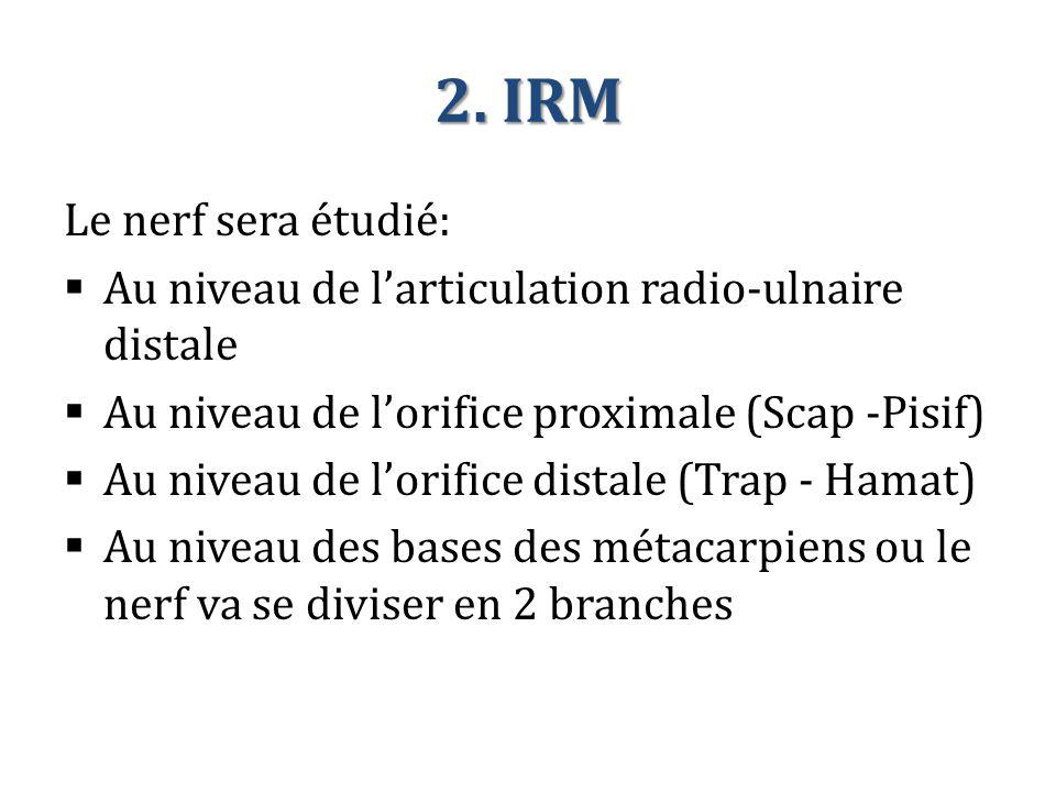 2. IRM Le nerf sera étudié:  Au niveau de l'articulation radio-ulnaire distale  Au niveau de l'orifice proximale (Scap -Pisif)  Au niveau de l'orif