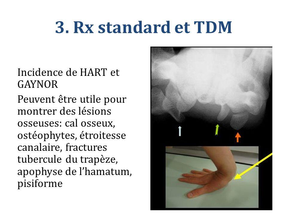 3. Rx standard et TDM Incidence de HART et GAYNOR Peuvent être utile pour montrer des lésions osseuses: cal osseux, ostéophytes, étroitesse canalaire,