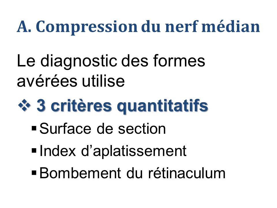 A. Compression du nerf médian Le diagnostic des formes avérées utilise  3 critères quantitatifs  Surface de section  Index d'aplatissement  Bombem