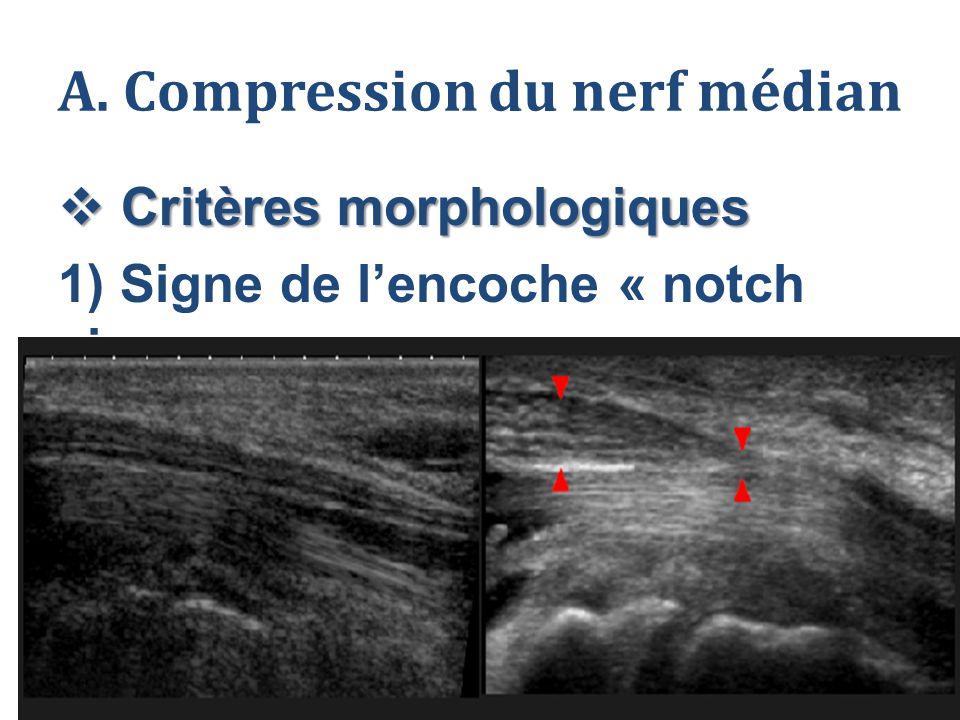 A. Compression du nerf médian  Critères morphologiques 1) Signe de l'encoche « notch sign »