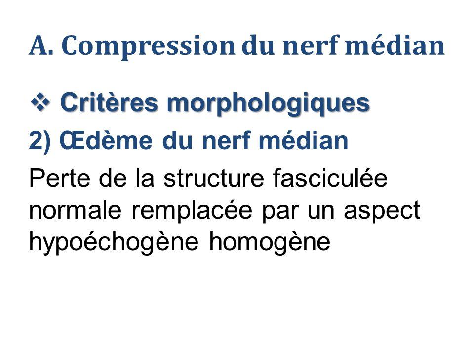 A. Compression du nerf médian  Critères morphologiques 2) Œdème du nerf médian Perte de la structure fasciculée normale remplacée par un aspect hypoé