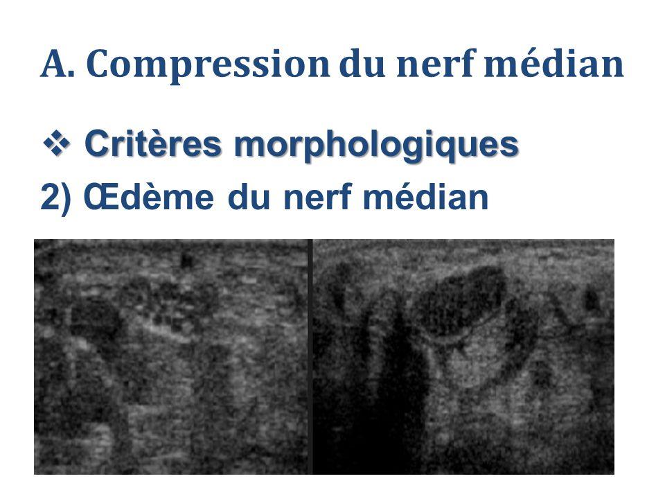A. Compression du nerf médian  Critères morphologiques 2) Œdème du nerf médian