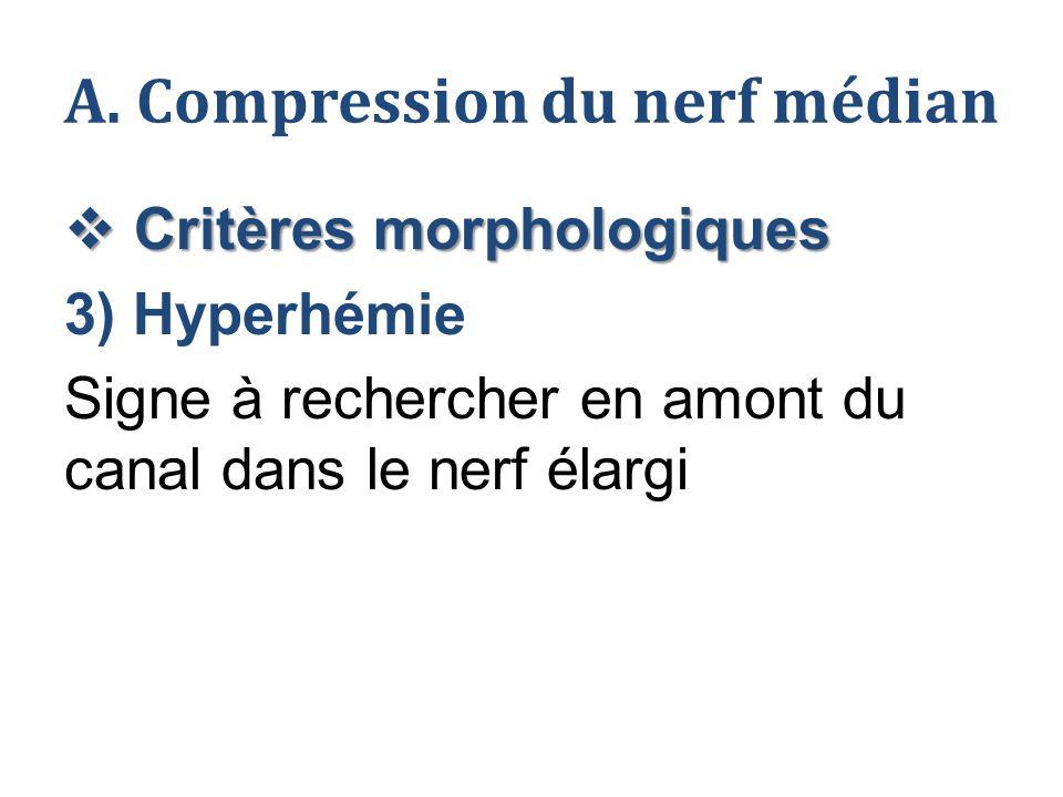 A. Compression du nerf médian  Critères morphologiques 3) Hyperhémie Signe à rechercher en amont du canal dans le nerf élargi