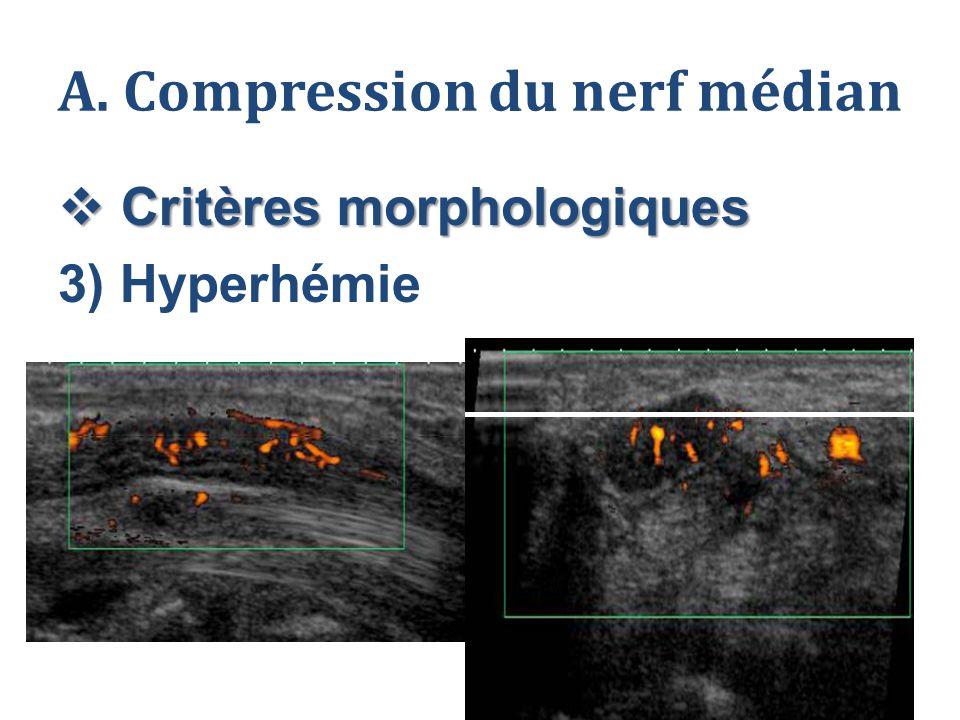 A. Compression du nerf médian  Critères morphologiques 3) Hyperhémie