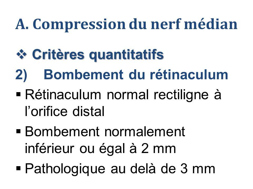 A. Compression du nerf médian  Critères quantitatifs 2) Bombement du rétinaculum  Rétinaculum normal rectiligne à l'orifice distal  Bombement norma