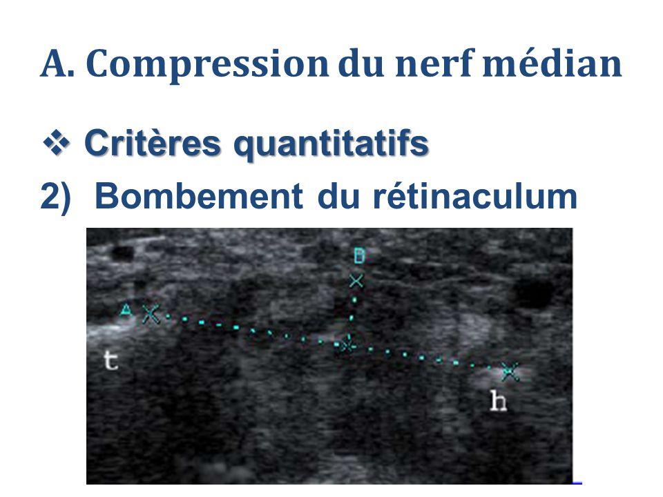 A. Compression du nerf médian  Critères quantitatifs 2)Bombement du rétinaculum