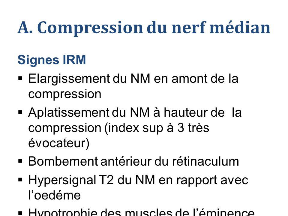 A. Compression du nerf médian Signes IRM  Elargissement du NM en amont de la compression  Aplatissement du NM à hauteur de la compression (index sup