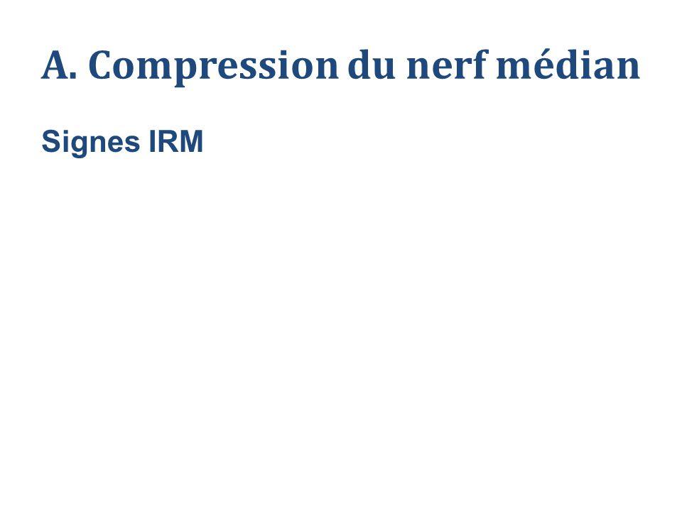 A. Compression du nerf médian Signes IRM