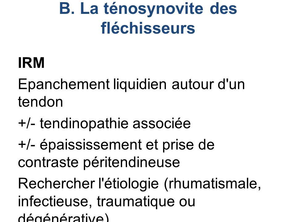 IRM Epanchement liquidien autour d'un tendon +/- tendinopathie associée +/- épaississement et prise de contraste péritendineuse Rechercher l'étiologie